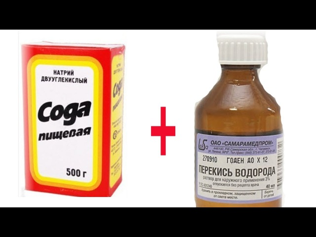 ★Лечение содой и перекисью водорода. Дешевле и эффективнее аптечных препаратов.