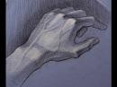 Операция по расклиниваю щелкающего пальца