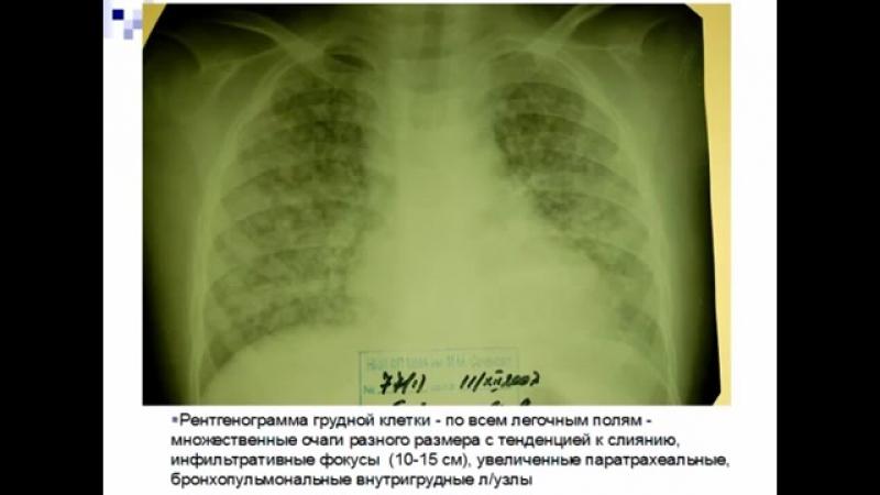 Туберкулез у детей Трудный пациент Консультант проф Геппе Н А © Tuberculosis in children