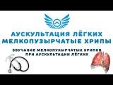 Аускультация лёгких: мелкопузырчатые хрипы