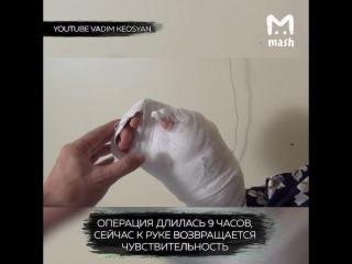 Хирурги в Красноярске пришили кисть женщине, которую оторвало мясорубкой