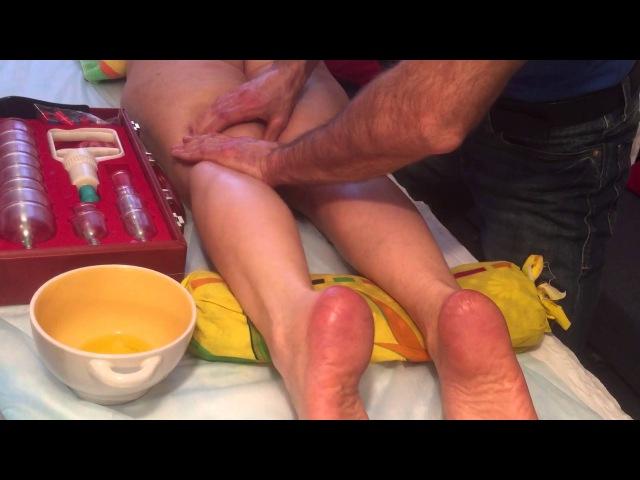 Как убрать варикозное расширение вен целлюлит и отеки на ногах