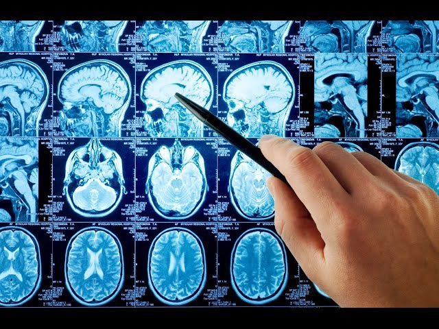 МРТ головного мозга: ответы на самые частые вопросы