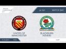 Of Manchesrer-Blackburn Rovers