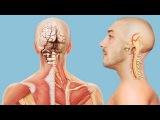 Признаки и симптомы инсульта и синдрома позвоночной артерии - противопоказания ...