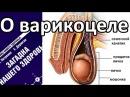 О варикоцеле - Петренко Валентина Васильевна