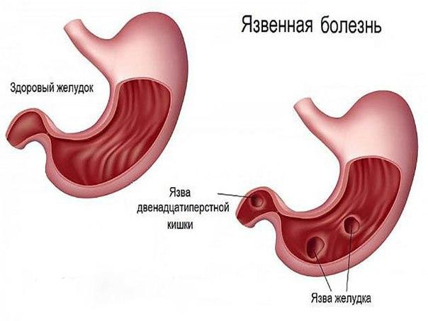 Лечение язвы желудка по методу М.В. Оганян