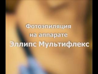 Фотоэпиляция подмышек в клинике «Семейная»