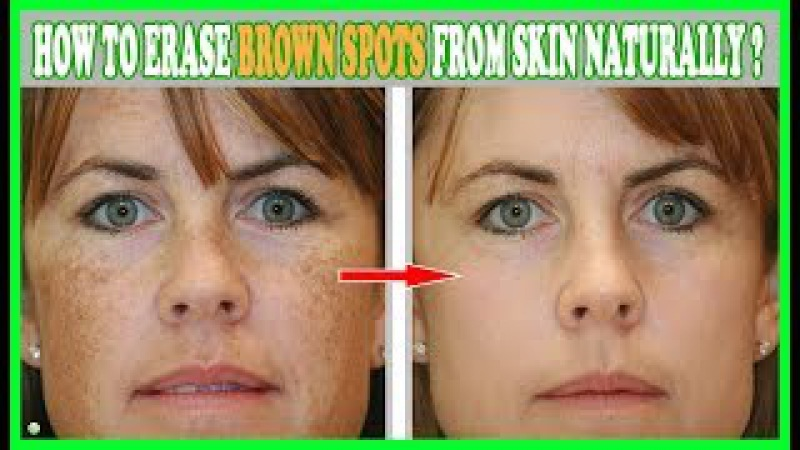 3 Natural Ways To Erase Brown Spots From Your Skin - Age Spots Removal | Best Home Remedies