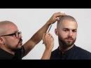 Alopecia difusa tratada con Micropigmentación Capilar