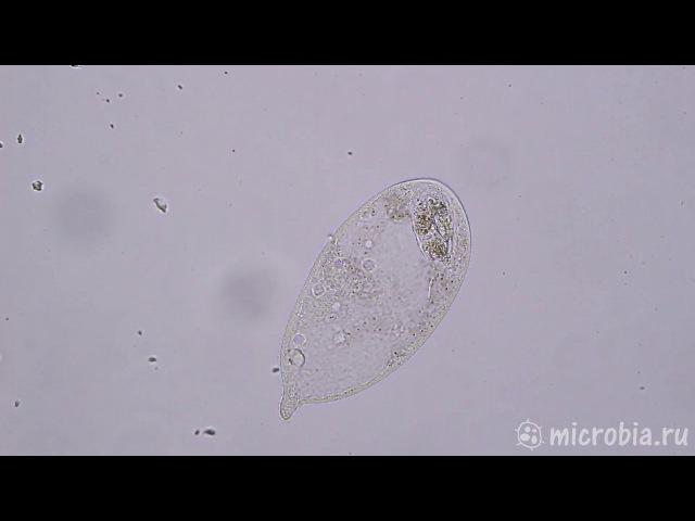 Trachelius defecates / Дефекация инфузории Трахелиус