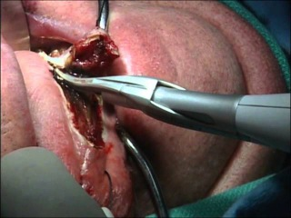 Left Partial Hemi-Glossectomy Featuring HARMONIC FOCUS® Curved Shears