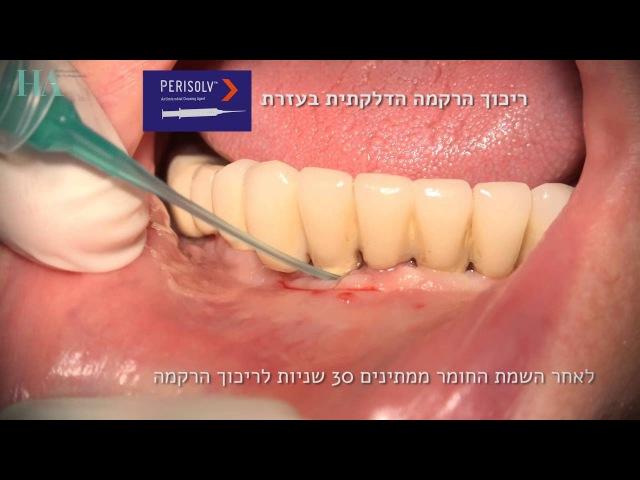HAsystems - Protocol (PLA) for Peri-Mucositis Peri-Implantitis (Mandible)