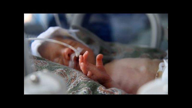 У Житомирському перинатальному центрі народилась перша у 2017 році трійня