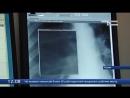 В Ишимской поликлинике №2 установили новый цифровой флюорограф