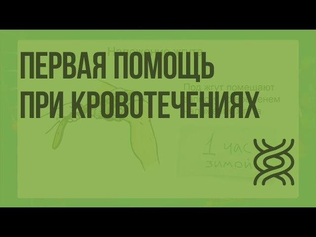 Первая помощь при кровотечениях » Freewka.com - Смотреть онлайн в хорощем качестве