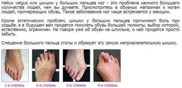 Почему трескаются стопы ног как лечить