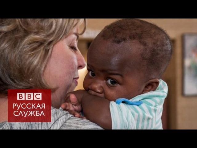 Хирурги успешно разделили девочку и близнеца-паразита