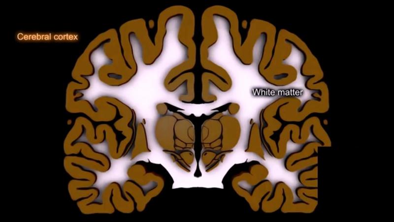 Анатомия полушарий большого мозга.720