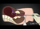 2nd Trimester Abortion Procedure Dr Anthony Levatino Former Abortionist Turns Pro Life