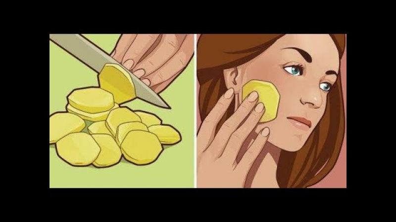 Она натирала лицо кусочком сырого картофеля каждый день на ночь Вот какой эффект!