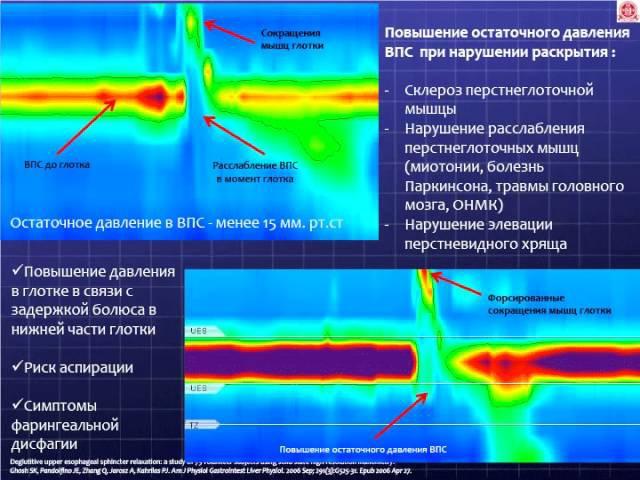 Кайбышева В.О. Орофарингеальная дисфагия в формате 3D