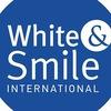 Отбеливание зубов White&Smile в Бердске