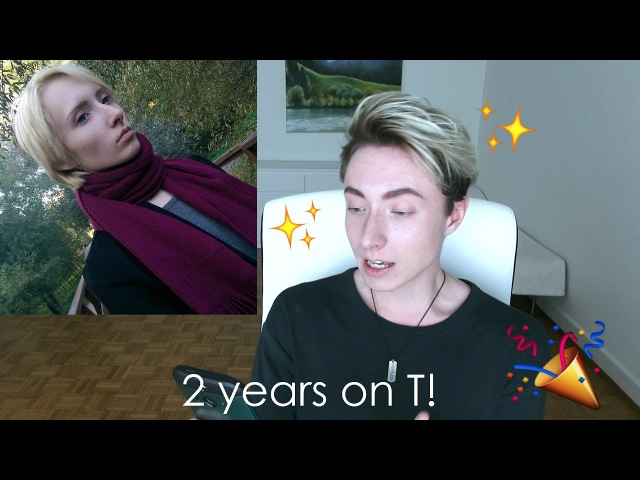 Ethan N: 2 года ГРТ || 2 years on T (eng sub) || FtM