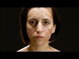 Гримеры показывают, во что превращают людей гепатит, туберкулез, опоясывающий лишай, дифтерия, оспа и чума