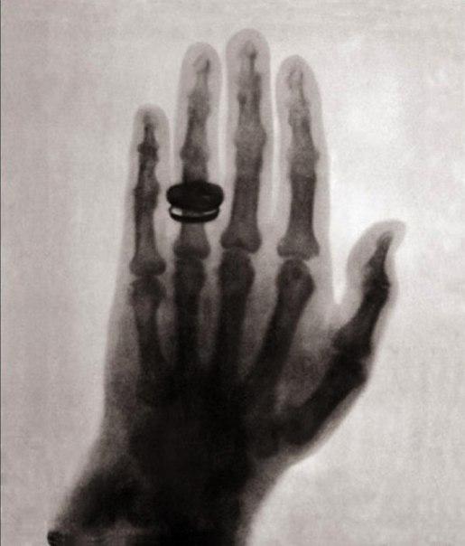 Первоначальный рентгеновский снимок, 1896 г.