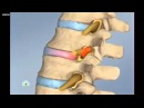 Остеопатия. Что это такое и что лечит?
