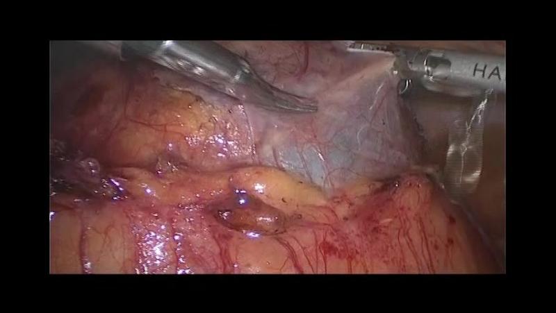 Свищ прямой кишки симптомы лечение операция по