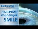 ReLEx SMILE - суть операции лазерной коррекции зрения по методу СМАЙЛ