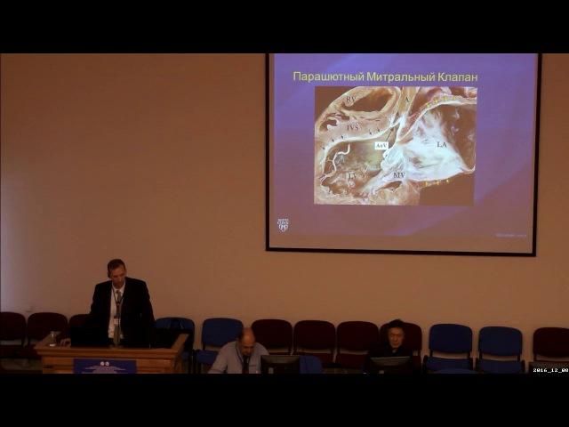 Шон синдром в практике детского кардиолога (eng)