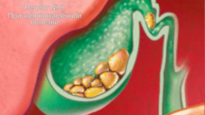 Пырей лекарство у вас под ногами Трава пырей целебные свойства, о которых мало кто знает 34 самых