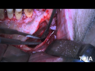 Cisti Mandibolare - Mandibular cyst removal