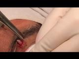 A Hi-Brow Kinda Cyst. Dr Pimple Popper