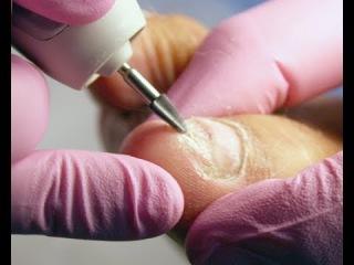 Работа с утолщенным ногтем в педикюре. Аппаратный педикюр керамической фрезой.