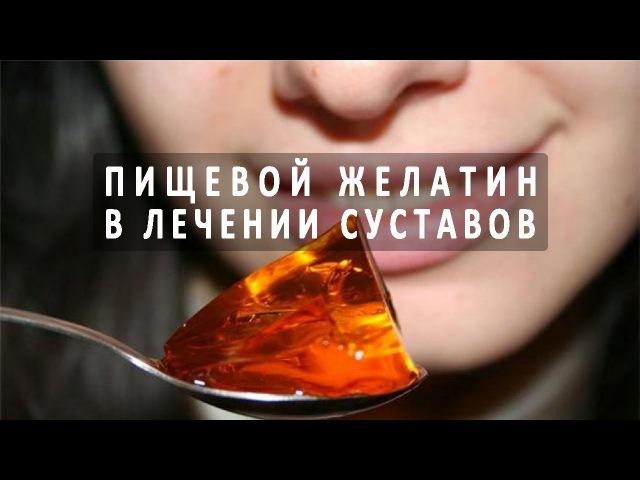 Эффективен ли пищевой желатин в лечении суставов?