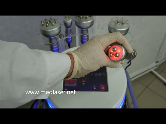 Аппарат ультрозвуковой кавитации и RF лифтинга CV-Mini Plus. Обновленная версия!