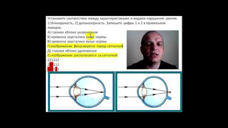 Установите соответствие между характеристиками и видами нарушения зрения