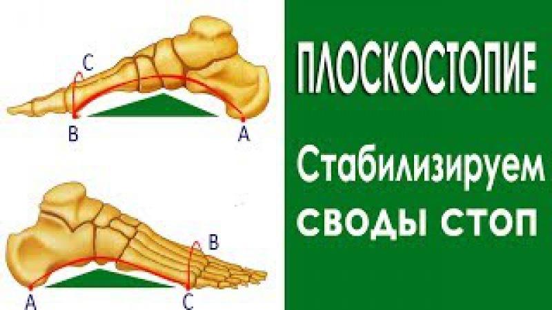 ПЛОСКОСТОПИЕ Упражнения для пальцев стоп