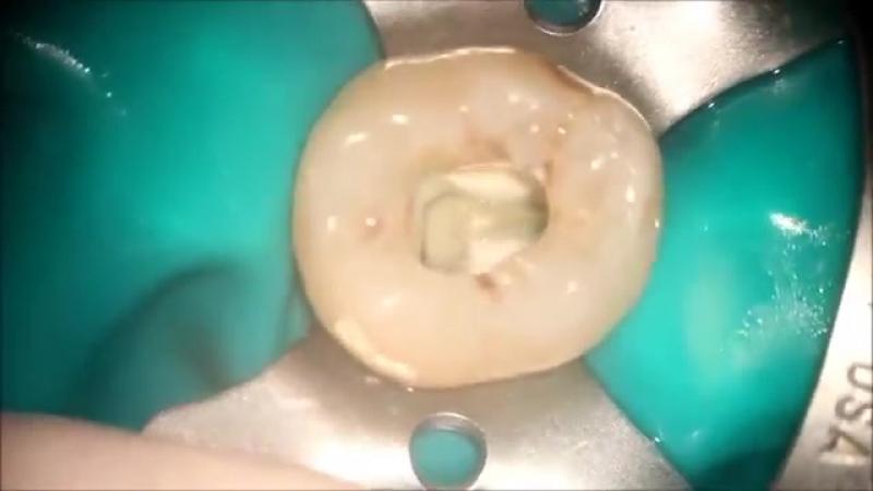 First Mandibular Molar - Endodontic acces cavity