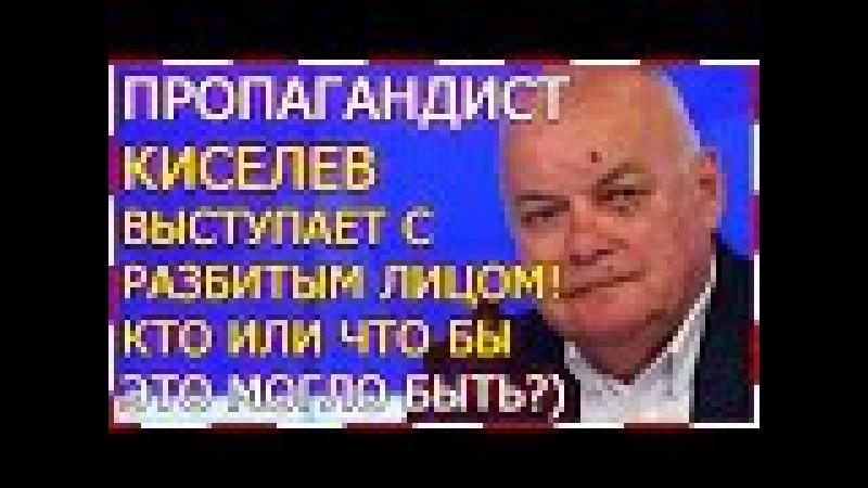 Д. Киселев с разбитым лицом! Что это могло бы быть?..