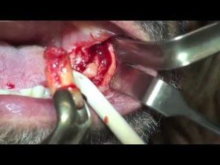 Removal dental mandible cysts ,dr.Stefano Piras (Rimini)