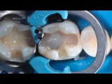 PALODENT V3 Dr Andre Reis and Dr Walter Dias