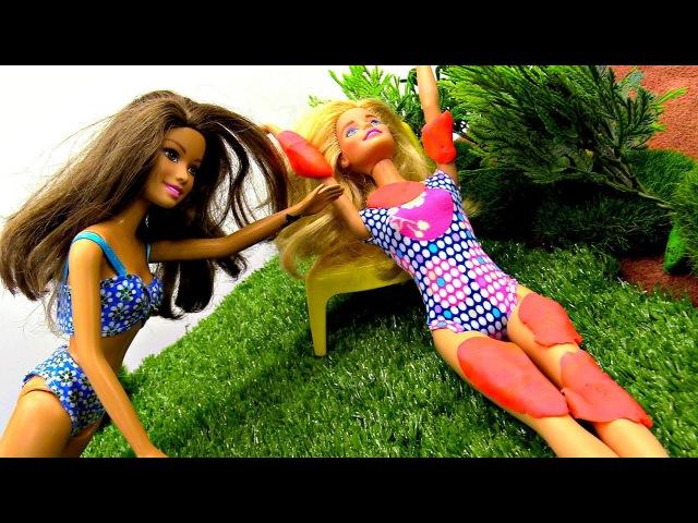 Видео БАРБИ СГОРЕЛА на солнце! Лечим Куклу 💊 Мультик КуклаБарби Играем в КУКЛ...