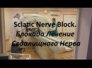 Блокада | Лечение Седалищного Нерва | Sciatic Nerve Block