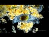 Water Bear (Tardigrade) in darkfield and polarized light. 100-350X