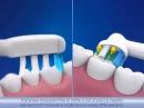 Разница между технологиями электрических зубных щеток Oral B